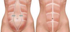 Dijastaza ili razdvajanje ravnog trbušnog mišića kod trudnica i porodilja