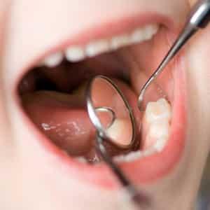prva-poseta-zubaru
